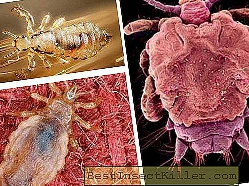 Lice and nits - Pediculosis incubation period of lice and nits