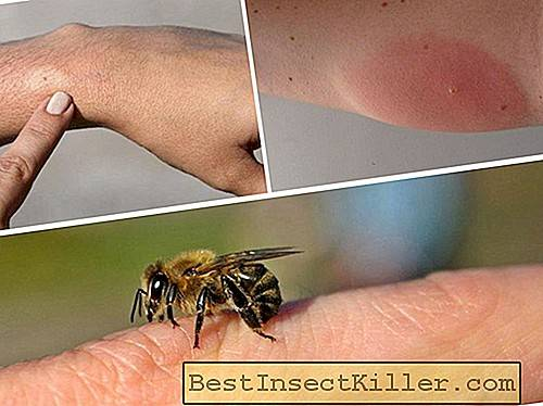 Allergy to a bee sting - signs and treatment